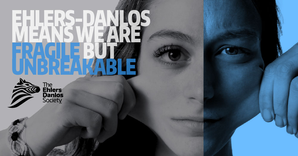 Image of girl pulling the skin on her face that read: Ehlers Danlos means we are fragile but unbreakable.